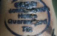 #CoronaVirus: विलगीकरणाचा शिक्का मारलेल्या 'शाई'मुळे हाताला संसर्ग?